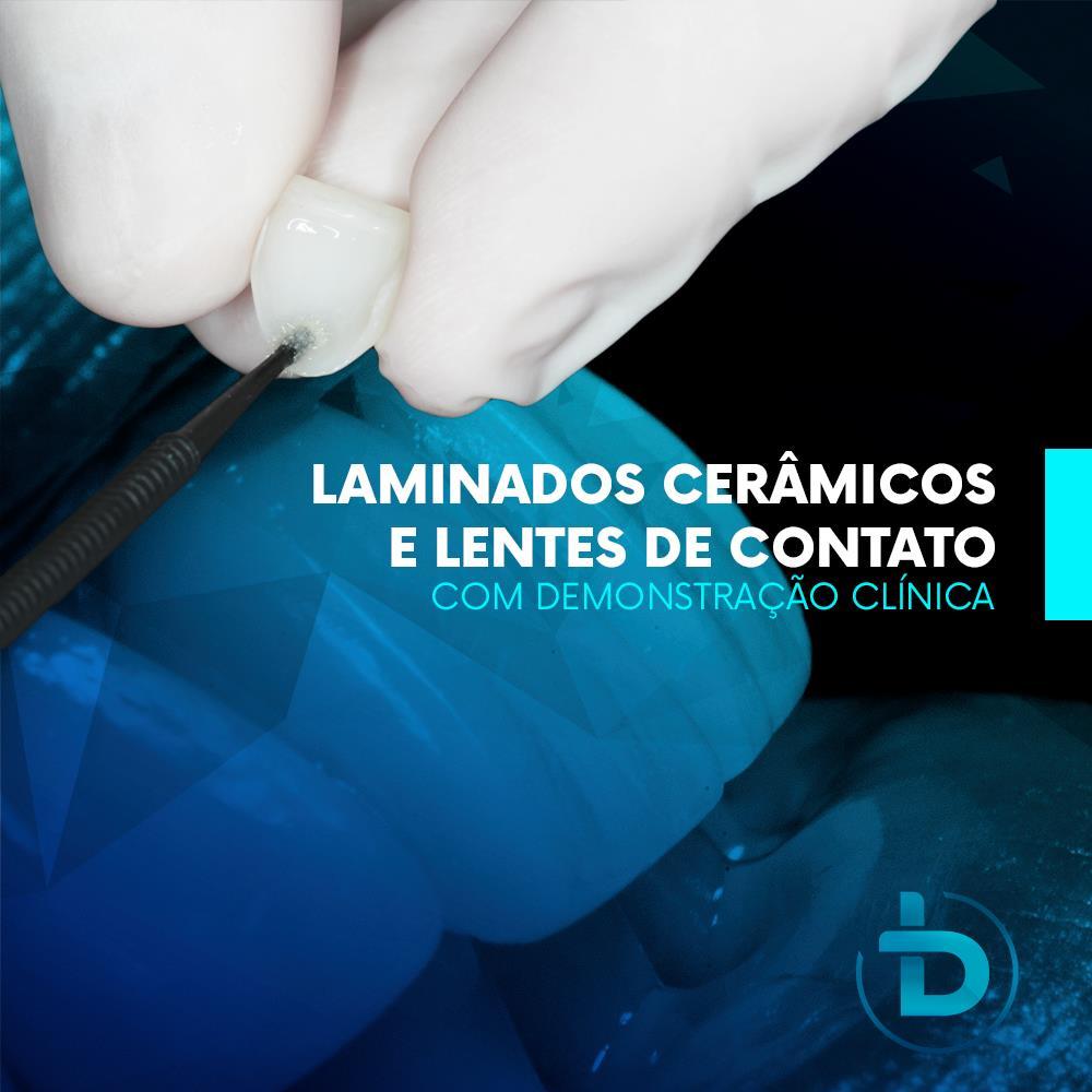 LAMINADOS CERÂMICOS E LENTES DE CONTATO