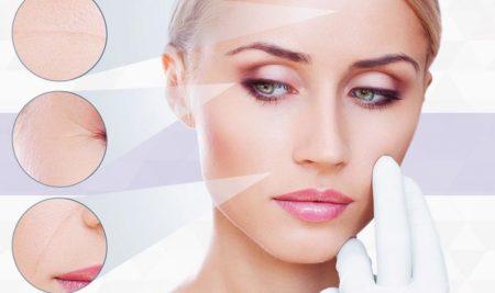 6 Causas do insucesso em Preenchimento Labial